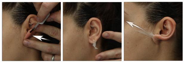 etape2 les oreille